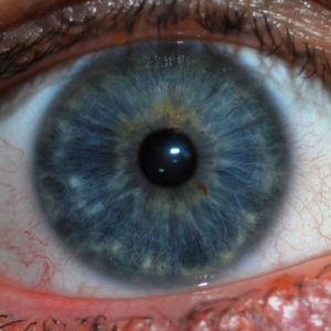 What Is Iridology?
