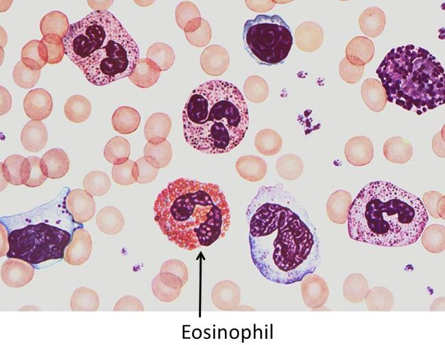 how to reduce eosinophil count