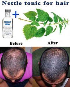 Best Stinging Nettle Shampoo